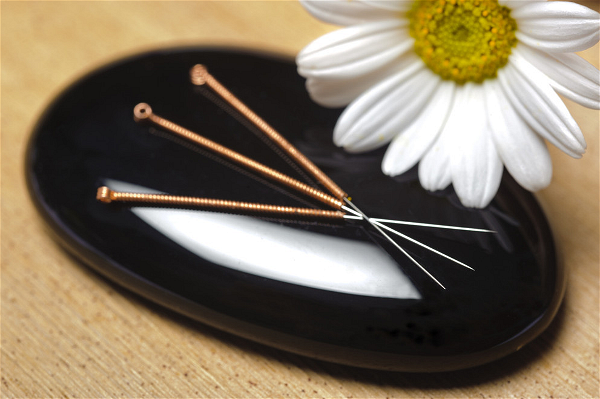 naturalhealthmc-acupuncture